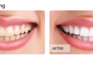 Procedures to make Informed decision between Teeth Whitening and Bleaching