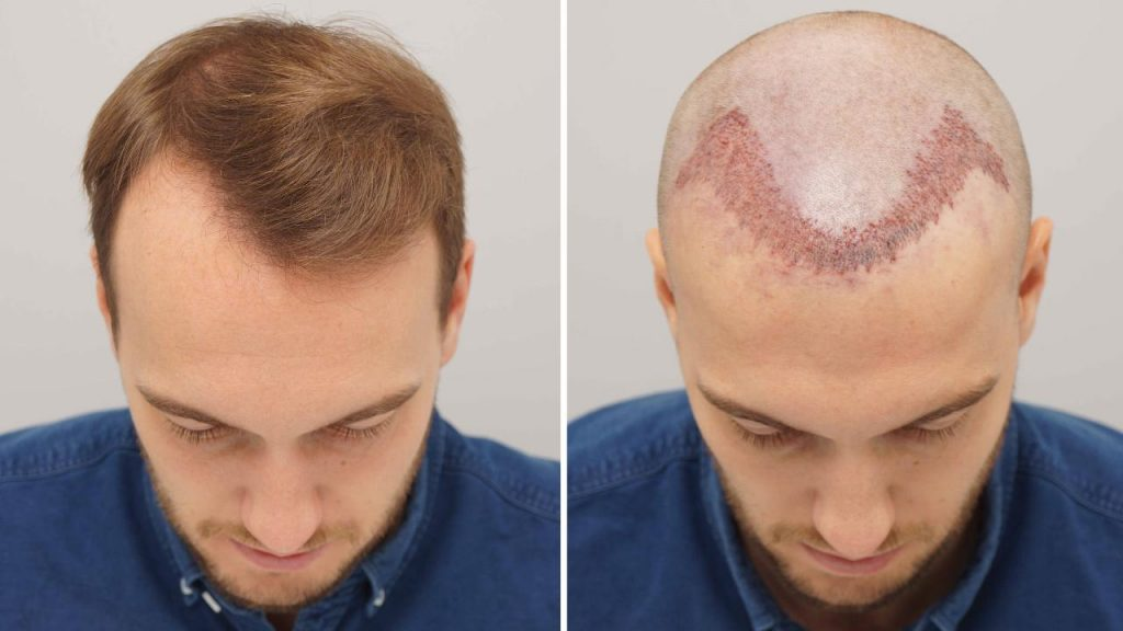 Why It Is Necessary To Use This Hair Transplant Treatment?